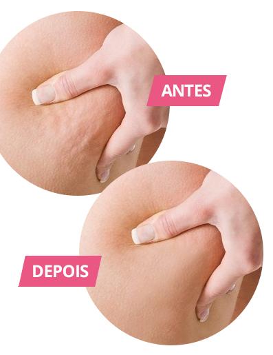 antes e depois do uso do Anticelulite