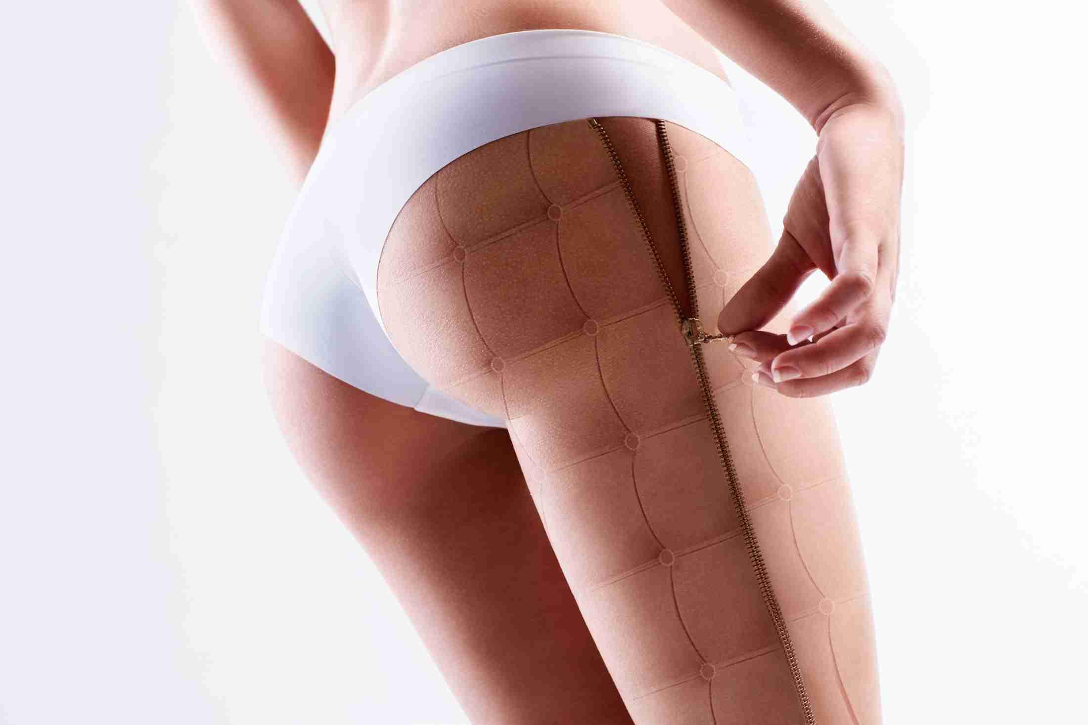 celulites nas pernas