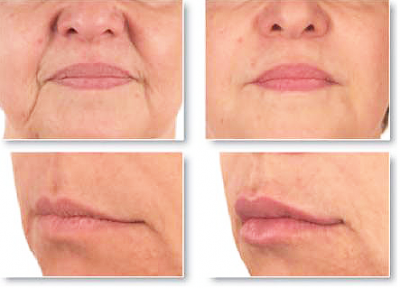 antes e depois bigode chinês