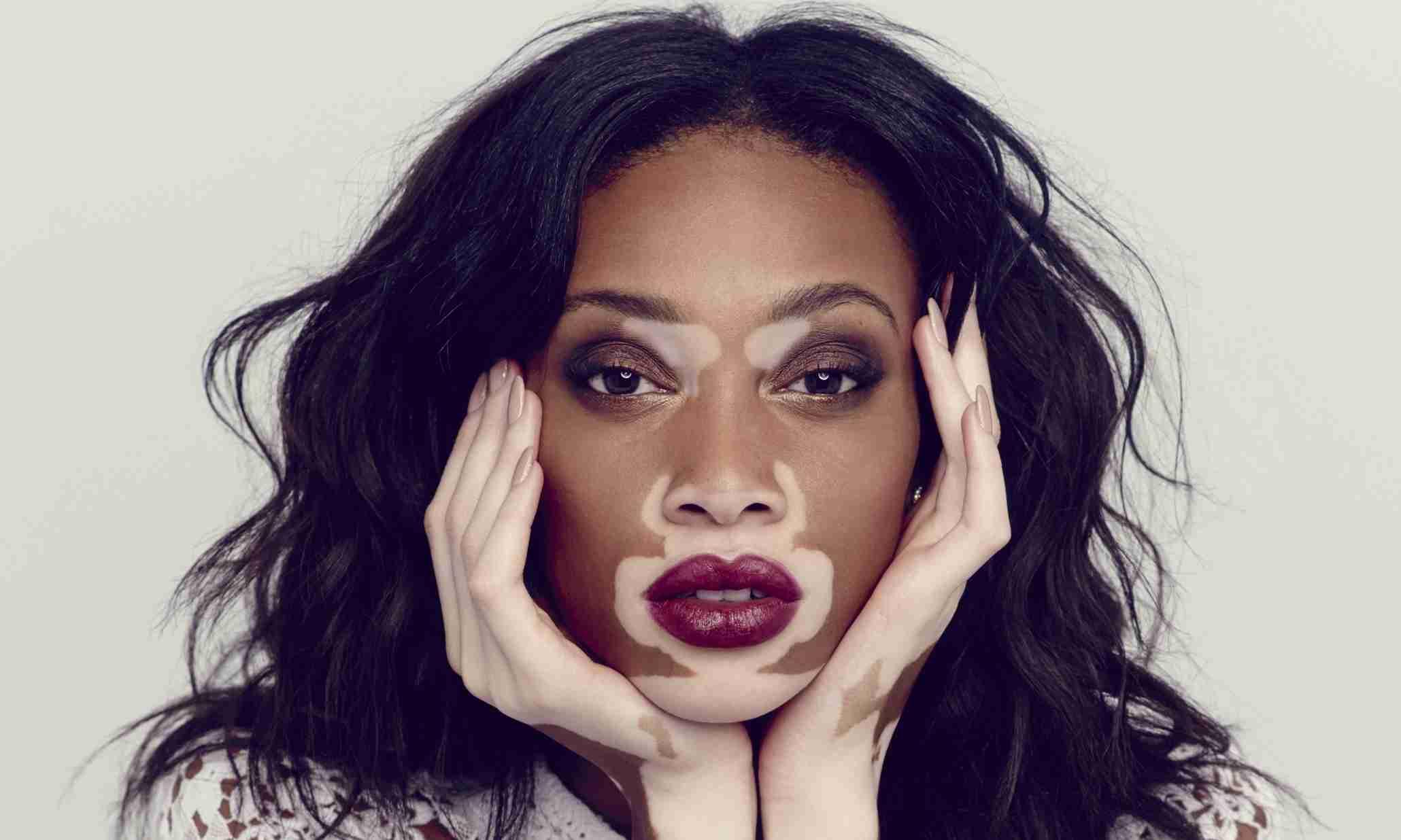 vitiligo tem cura